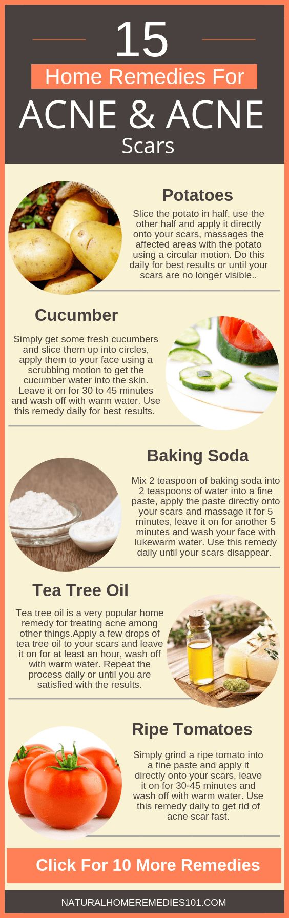 15 Natural Home Remedies For Acne Scars