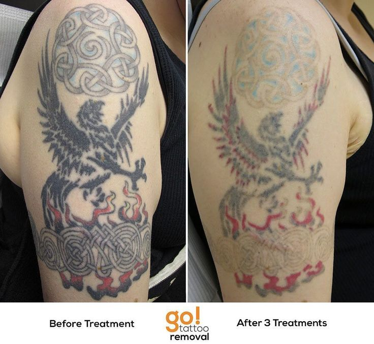 701 best images about tattoo removal in progress on for How much is picosure tattoo removal