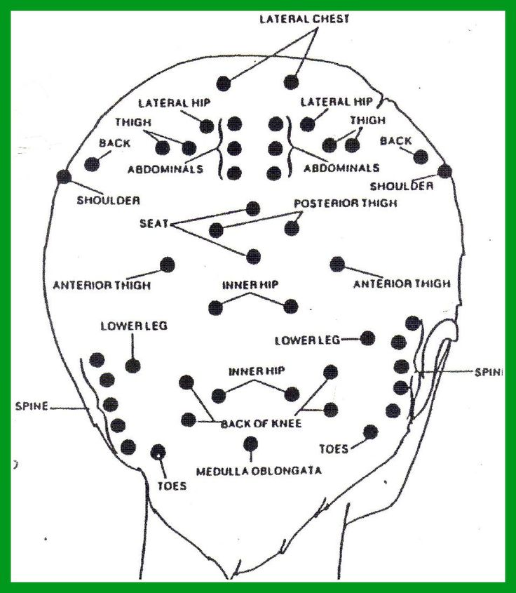 Pressure Points For Migraine Relief Diagram