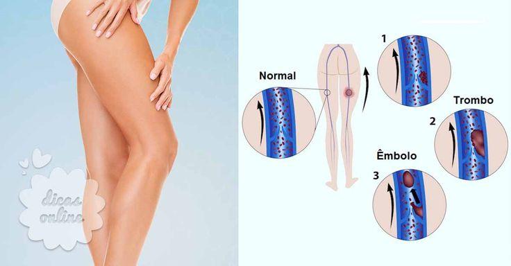 Incrível! Saiba como evitar uma trombose venosa profunda! Conheça os sintomas e vigie o seu corpo. - # #TromboseVenosa