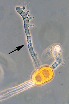 promycelium (pl. promycelia): in rust and smut fungi, a germ tube issuing from the teliospore and bearing the basidiospores (germinating teliospore of Puccinia pampeana