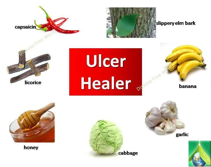 Ulcer Healers :  The majority of ulcers develop in the part of the gut just after the stomach called the duodenum, though some develop in the stomach itself. Dietary changes and certain nutritional supplements may promote ulcer healing and help prevent a recurrence of the problem. Instead of pursuing the most common conventional ulcer treatment option, which only leads to further digestive problems, it is recommended to try any of the following all-natural ulcer remedies.