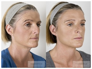 Botox before and after treatment of the forehead region lateral view.