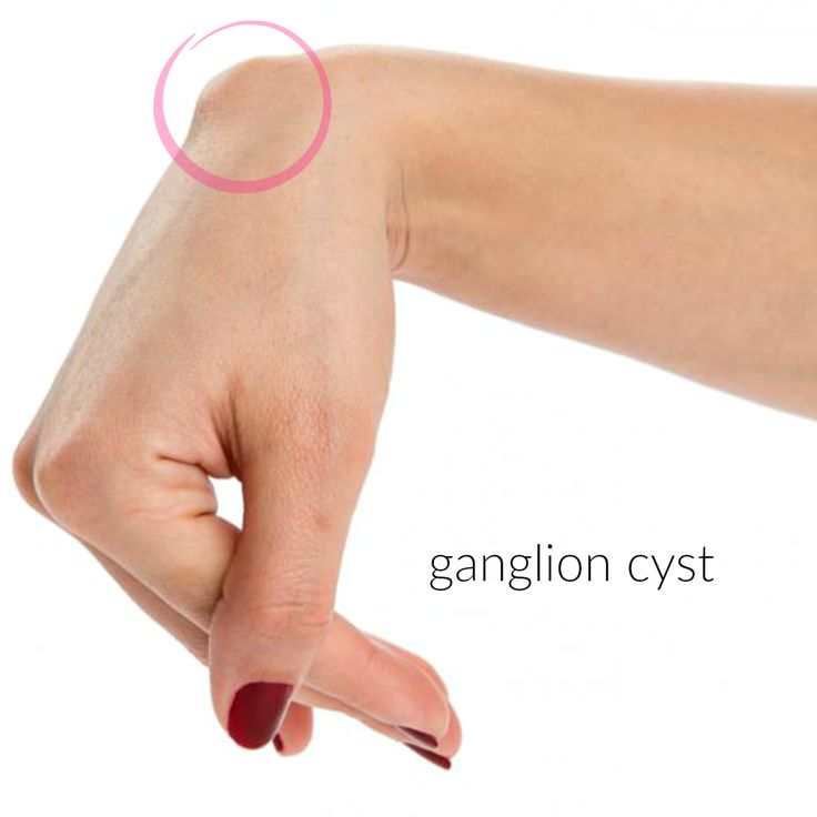 23 Best Ganglion Cysts Images On Pinterest