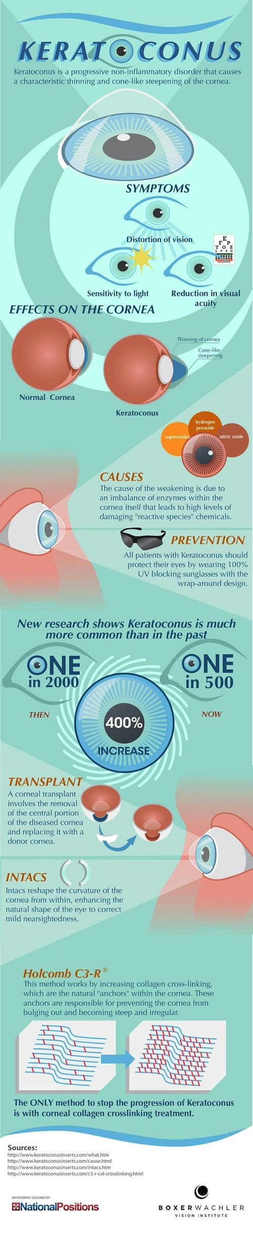 eye-info-keratoconus