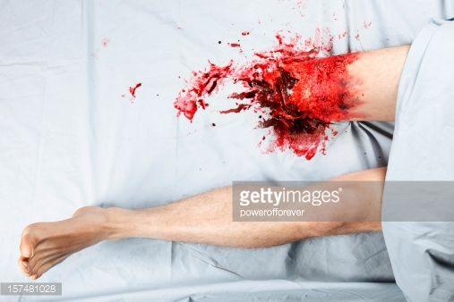 Stock Photo : Leg Amputation