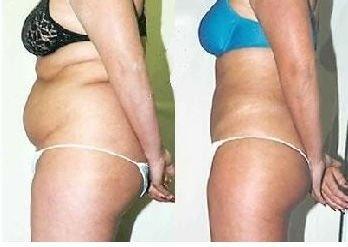 Ultrasonic fat cavitation results. Yep it REALLY works.