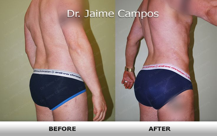 Liposuction and fat grafting into buttocks Before and After picture - Results by Dr.Campos  www.mensculpting.com www.tjlipo.com