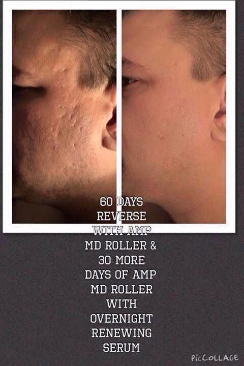 Dealing with acne scars? Rodan and Fields and I can help! Results while using Reverse regimen and Amp MD roller! ambercaster.myrandf.com