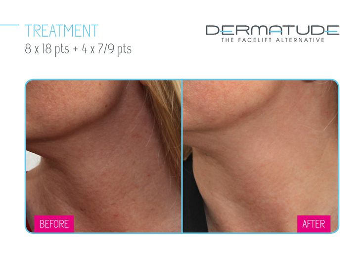 #Dermatude Before and After - Neck