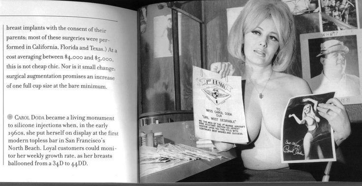 """In 1964, Carol Doda made international news by becoming the first noted topless dancer in the US; she also pioneered breast implants, enhancing her bust from size 34 to 44 through silicone injections. Her breasts became known as Doda's """"twin 44s"""" and """"the new Twin Peaks of San Francisco."""""""