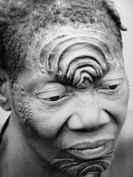 Scarificazione molto complessa (che necessitava di più interventi nel tempo) su fronte e mento (Boko, Congo Belga)