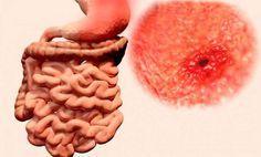 Como eliminar la acidez y la gastritis de por vida en un 2×3 con un conocido y eficaz remedio