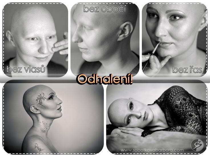 #photo #foceni #baldwomen #holohlavazena #bald #holahlava #art #umeni #cancer #rakovina