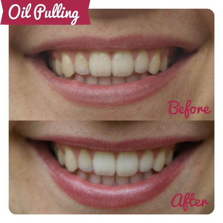 Can oil pulling for a fortnight transform your teeth? Oil pulling before and after review - Cosmopolitan.co.uk