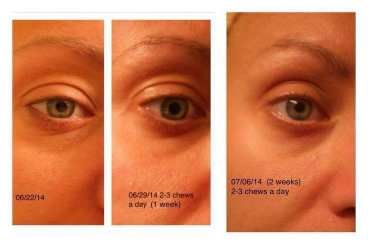 "Anti-Aging Eye Treatment, it's called: ""PROBITA""  Buy online:  http://healthjourney.govisi.com/"