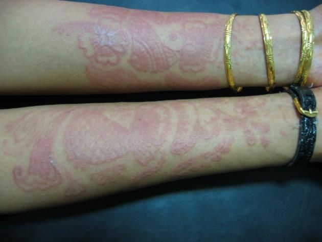 Temporary Henna Tattoos Can Cause Long-Lasting Allergic Reactions