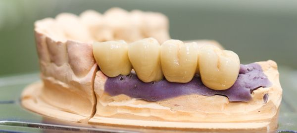 """Porcelain crown is useful when a tooth is decayed or broken to the extent that fillings are not able to repair the damage. Porcelain crowns or """"caps"""" wrap around the entire portion of a tooth and act as a new outer layer of the tooth in comparison to fillings which just cover a very limited part of the tooth.   Learn more at http://www.smilessence.com.au/"""