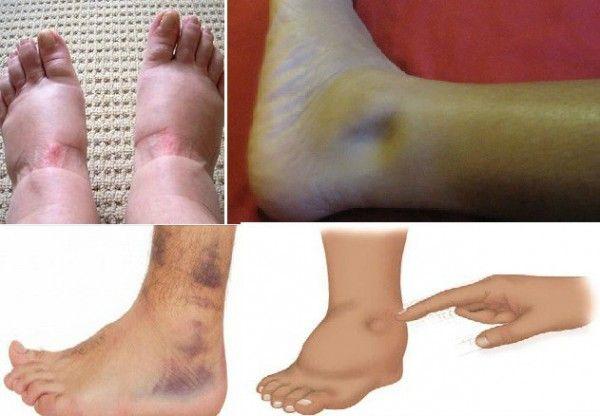 facial leg pain jpg 1200x900