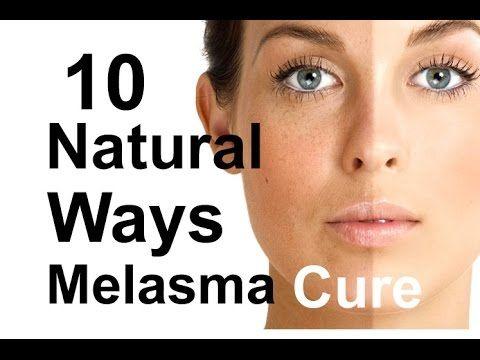 1000 ideas about melasma treatment on pinterest melasma cures dark spots on face and dark spots. Black Bedroom Furniture Sets. Home Design Ideas