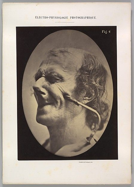Figure 6: The grimice produced is similar to a tic of the face  Artist: Guillaume-Benjamin-Armand Duchenne de Boulogne (French, 1806–1875) Artist: Adrien Tournachon (French, 1825–1903) Date: 1854–56, printed 1862