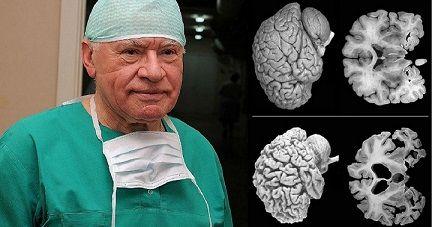 Neurochirurdzy biją na alarm. Każda kobieta powinna poznać te fakty! - podaj.to