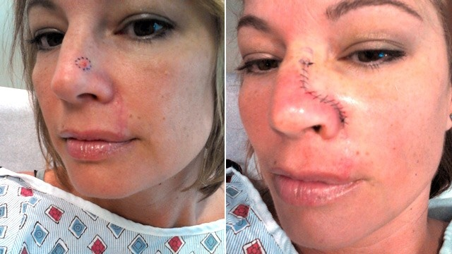 Revealing article which illustrates what MOHS surgery does to patients.        Please visit our site to learn more on non-invasive treatments for NMSC: www.sensushealthcare.com        SURGERY IS NOT YOUR ONLY OPTION!