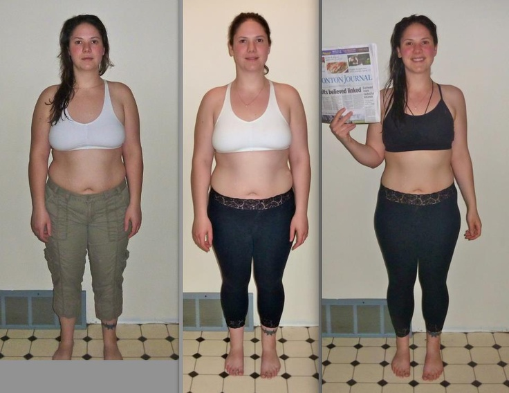 Reshape helped Rayme Paskieka with her amazing weight loss! Check out more pictures on her facebook page