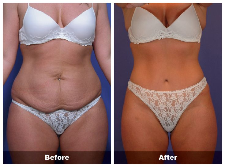 reduce stomach skin after weight loss