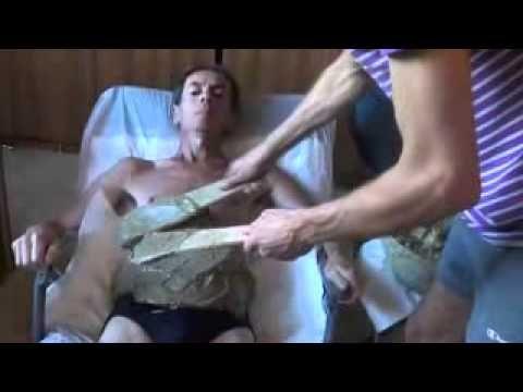 ▶ Fangoterapia addome - YouTube