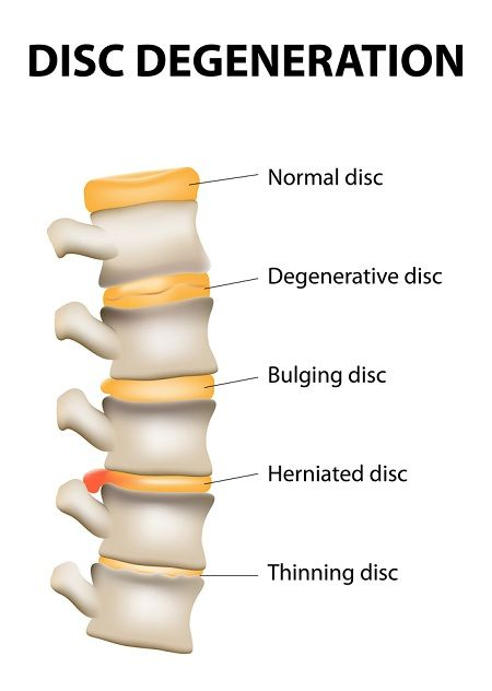 A good read on disc degeneration and lower back pain - symptoms and treatment.
