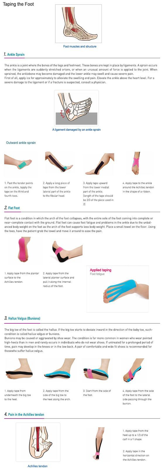 Causes of Foot Pain Kinesio Taping instruction for a foot pain: