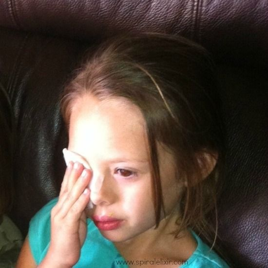 How We Used Essential Oils to Heal Pink Eye (Conjunctivitis) - Free recipe of what essential oils to use, how to apply it, and how it works... true story...