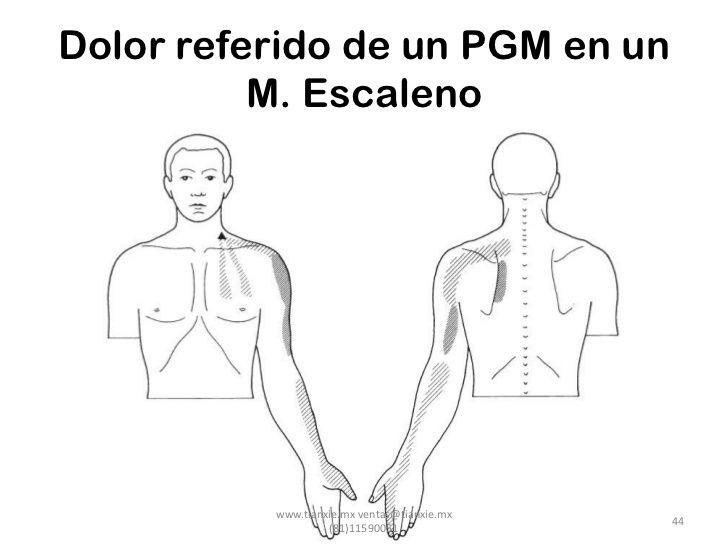 Dolor referido de un PGM en un          M. Escaleno          www.tianxie.mx ventas@tianxie.mx                             ...