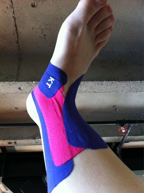 KT Tape for ankle - totally needs this for my sprained ankle!