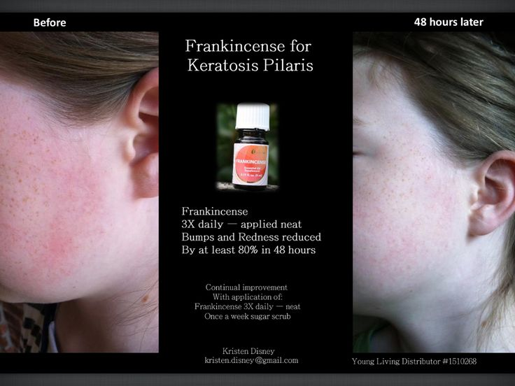 Frankincense helped my daughter's Keratosis Polaris  Young Living oils are the best!!