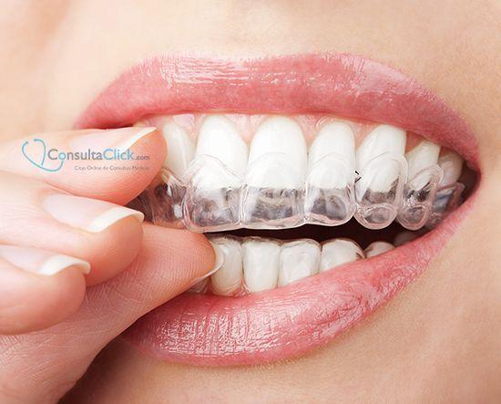 ¿Conocéis la ortodoncia invisible? Es el tratamiento más estético para la corrección de los dientes. A través de unos alineadores trasparentes, que se cambian cada dos semanas, se va corrigiendo la alineación dental. Es un tratamiento cómodo, ya que se quita y pone fácilmente.