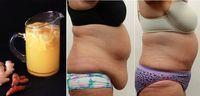Receta natural a base de cúrcuma, jengibre, cayena y limón para combatir el problema de vientre bajo. Resultados inmediatos.
