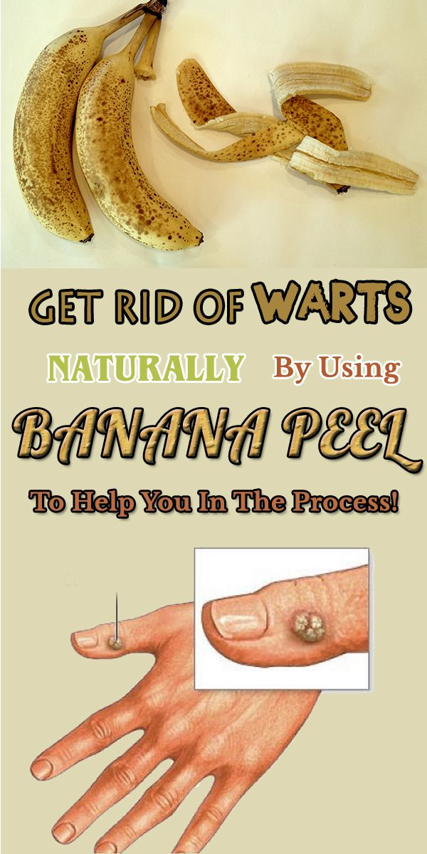 Get Rid Of Warts Naturally By Using Banana Peel To Help You In The Process!
