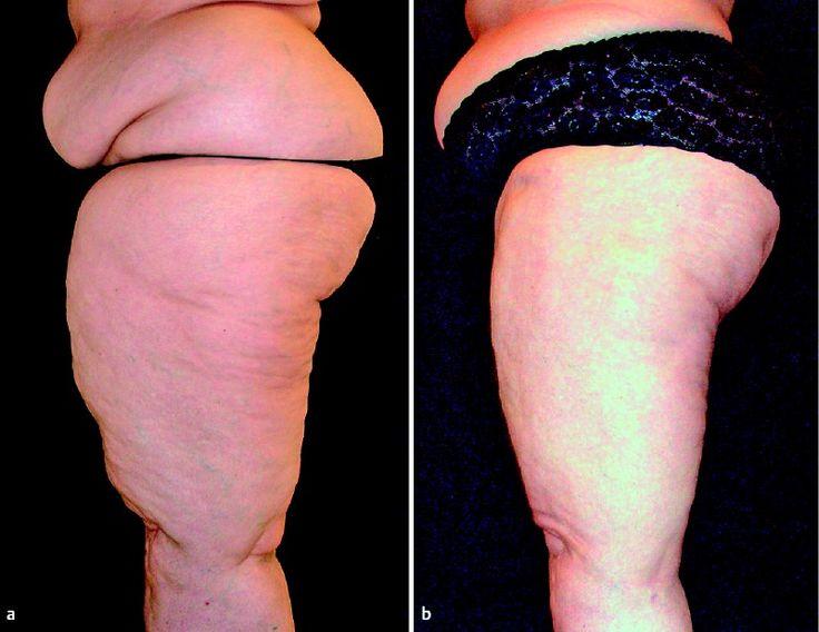 how to lose lipedema fat