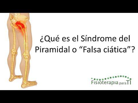 """Síndrome del piramidal o """"Falsa ciática"""". Qué es, por qué se produce, cómo reconocerlo y tratamiento - YouTube"""