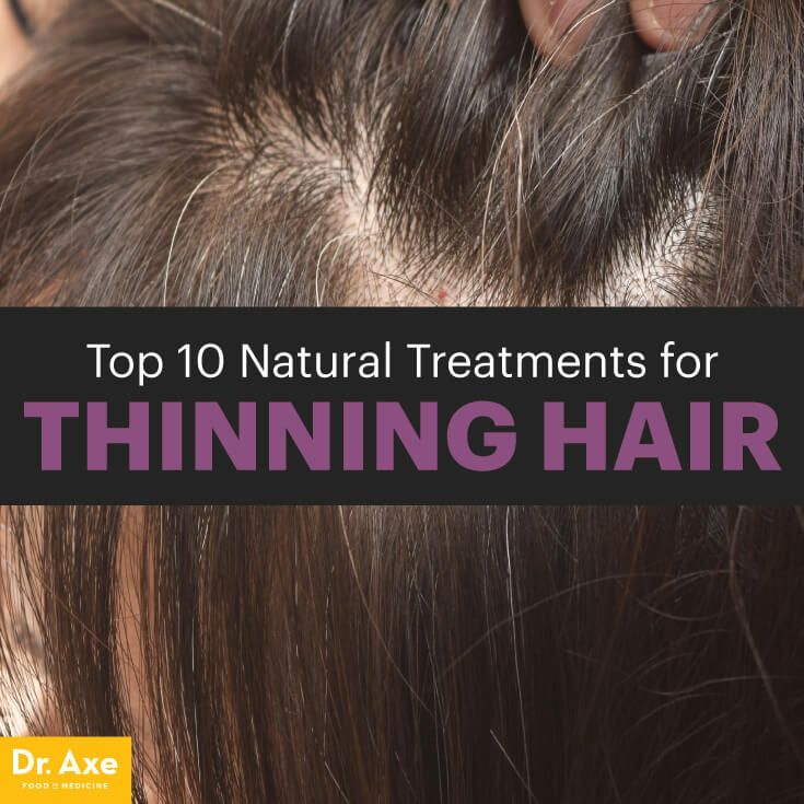 Natural treatments for thinning hair - Dr. Axe http://www.draxe.com #health #holistic #natural