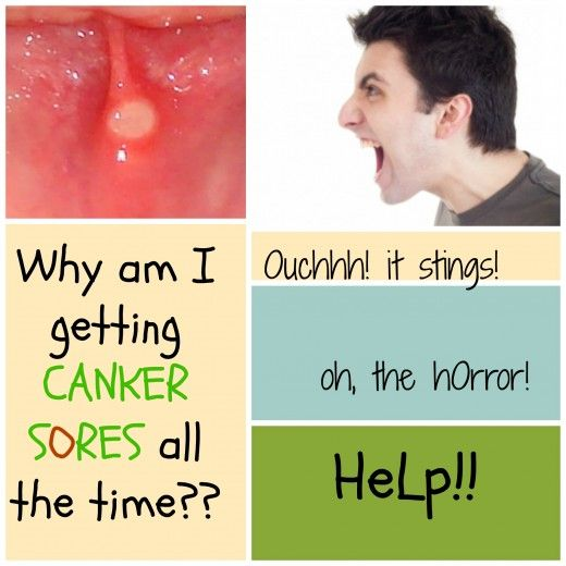 Don't you hate it when you get canker sores? Why do canker sores come anyway? What's causing your canker sores?