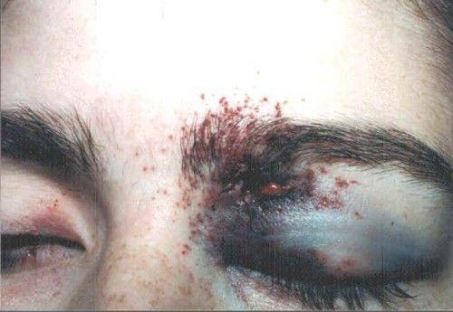 Bruises | Black Eyes | Pinterest | Oc and Photography