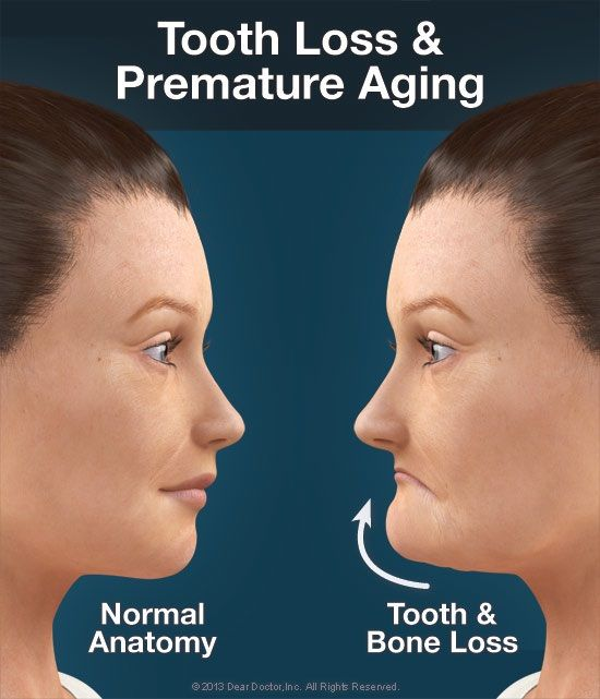 Dentaltown Tooth Loss & Premature Aging. Normal Anatomy