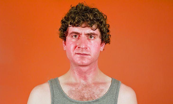 A Severely Sunburned Man & an Odd Prescription   Funny - BabaMail