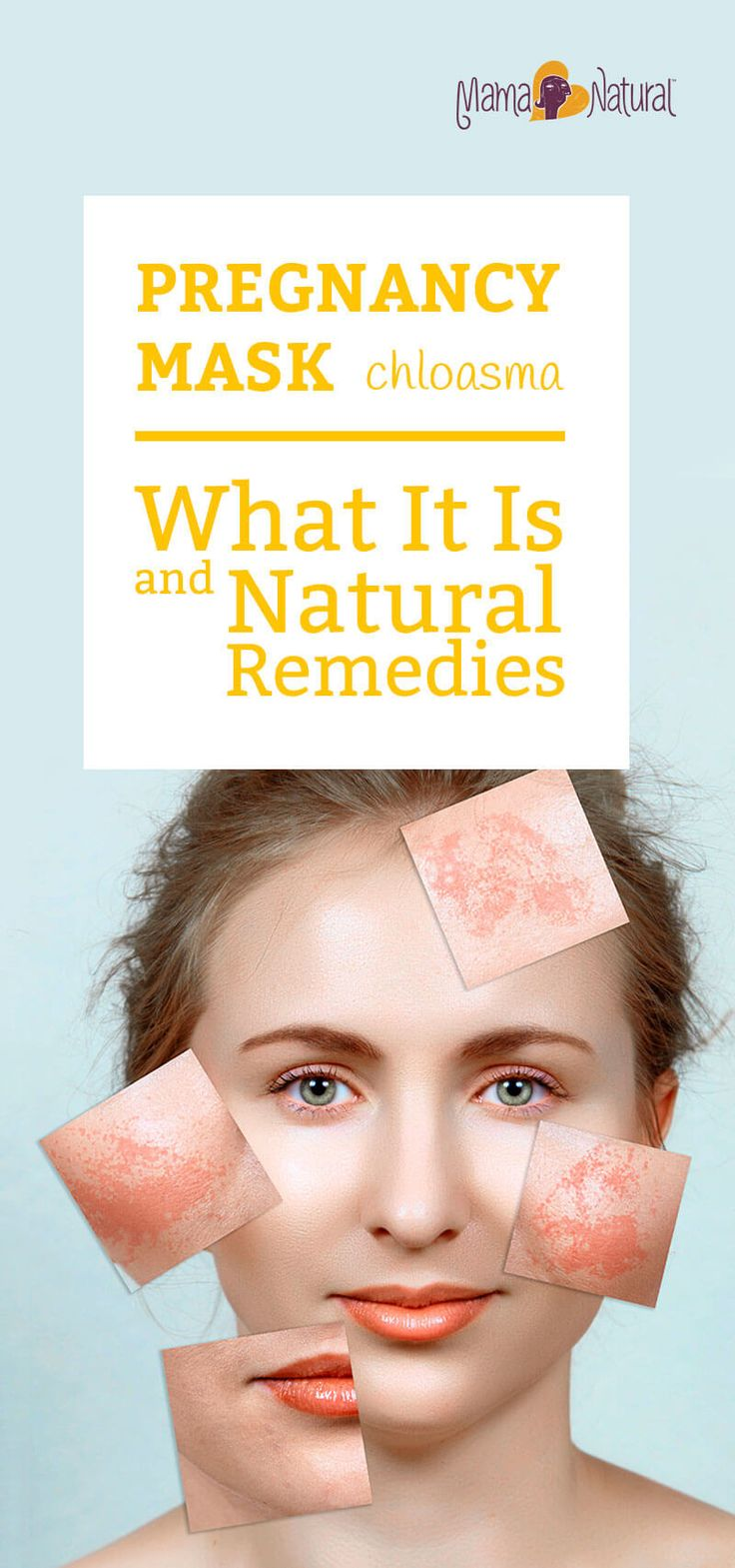 Find out what pregnancy mask is, who is affected by it, and how you can prevent and treat pregnancy mask (chloasma) naturally. http://www.mamanatural.com/pregnancy-mask/