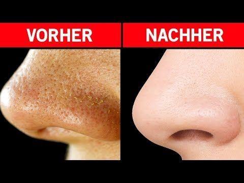 Befreien Sie sich von großen Poren - 5 wirksame Heilmittel! - Youtube #befreien #heilmittel #poren #wirksame #youtube