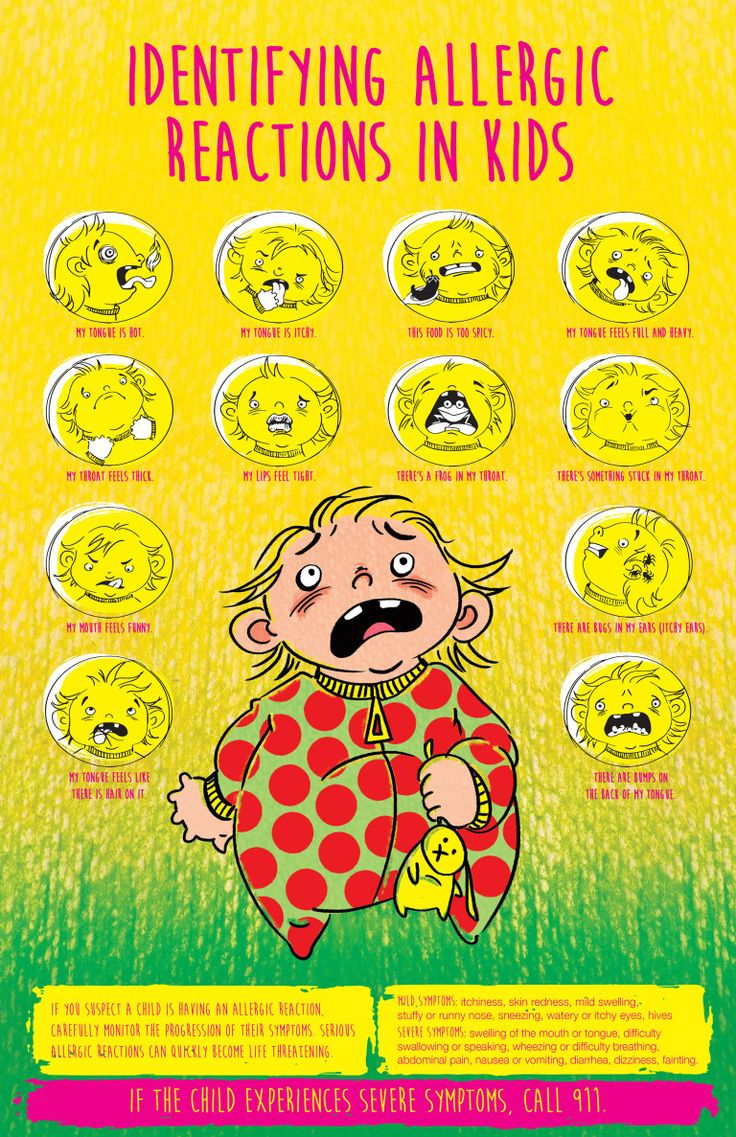 Identifying Allergic Reactions in Kids Poster   There are around 15 million Americans that have some form of a food allergy. Most allergic reactions cause mild discomfort, but in very serious cases food allergies may be life threatening. Refer to this chart below to help you identify allergic reactions in children.   StateFoodSafety.com