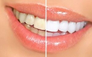 2 NECESSARY COMPONENTS white you teeth in just one minute in a natural way!